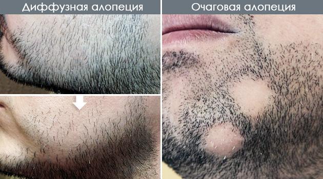 Средство по уходу сухих и секущихся волос