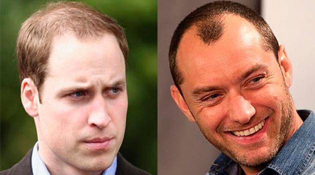 Какая причёска подойдет для мужчин с залысинами
