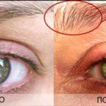 Алерана фото до и после применения 8