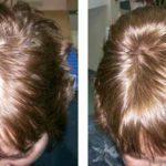 Миноксидил фото до и после 1