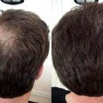 Миноксидил фото до и после 12