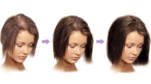 Касторовое мало для роста волос