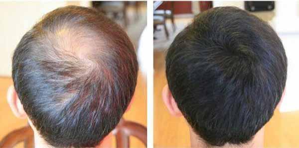 Миноксидил для волос: 2%, 5%, 15% фото до и после, побочные эффекты,  инструкция по применению